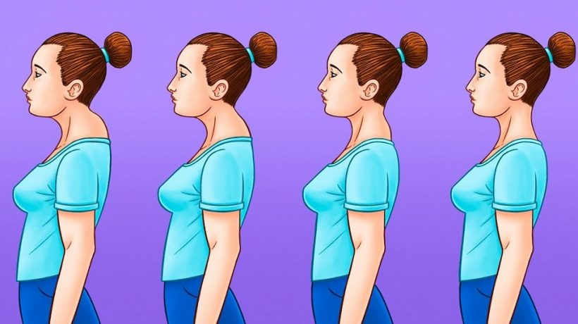Buffalo hump: how to remove it and exercises